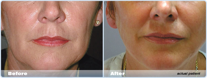 Thread Lift - Stitch Lift Melbourne | Dr Bruce Fox Cosmetic Clinic