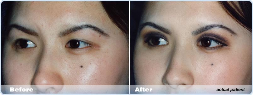 Laser Eyelid Surgery (Blepharoplasty) Melbourne | Dr Bruce Fox